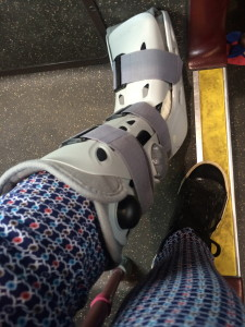 And here is my bionic leg